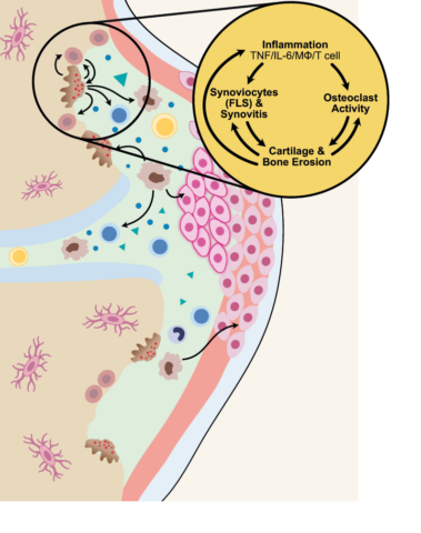 Before Treatment: In autoimmune disease, the immune cells are overactive, and attack the structural cells in the body's nerves, skin, organs or joints. The cells' ability to carry out repairs and normal functions is overwhelmed